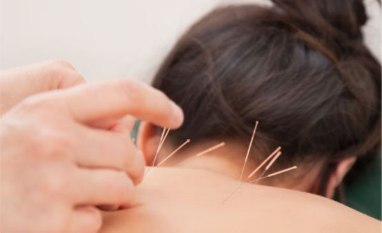 aucpuncture treatment on women's upper back